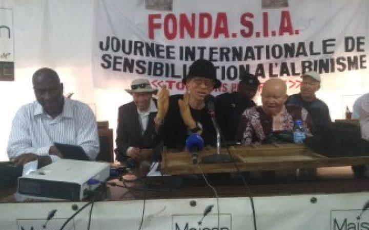 JISA: la FONDASIA lance un appel pour poursuivre la rédaction du projet de loi sur l'albinisme